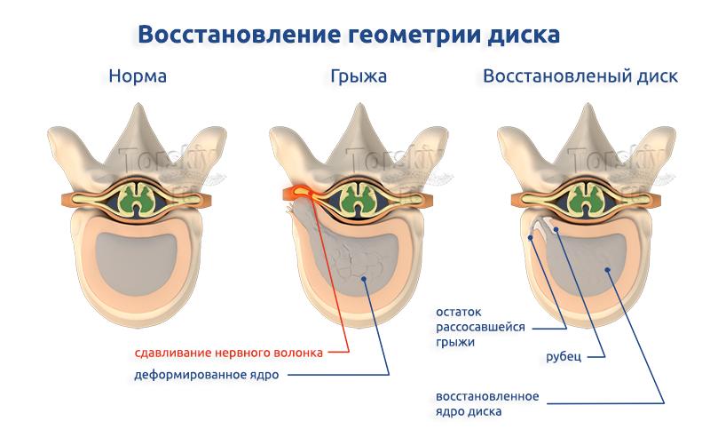 herniahealingtopview