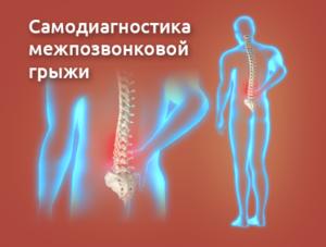 hernia_simptoms