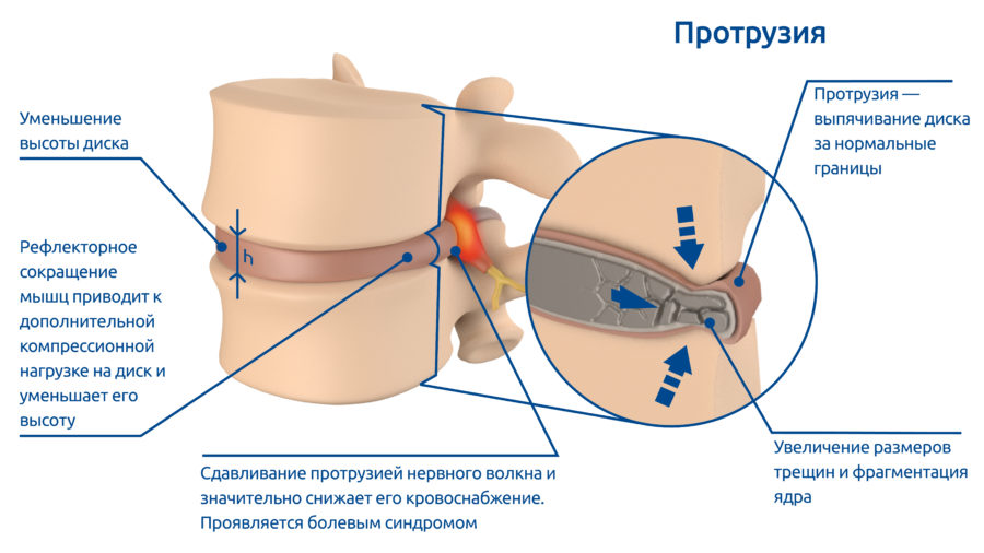 osteoPictures-02