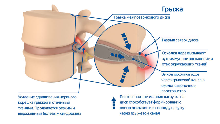 osteoPictures-03