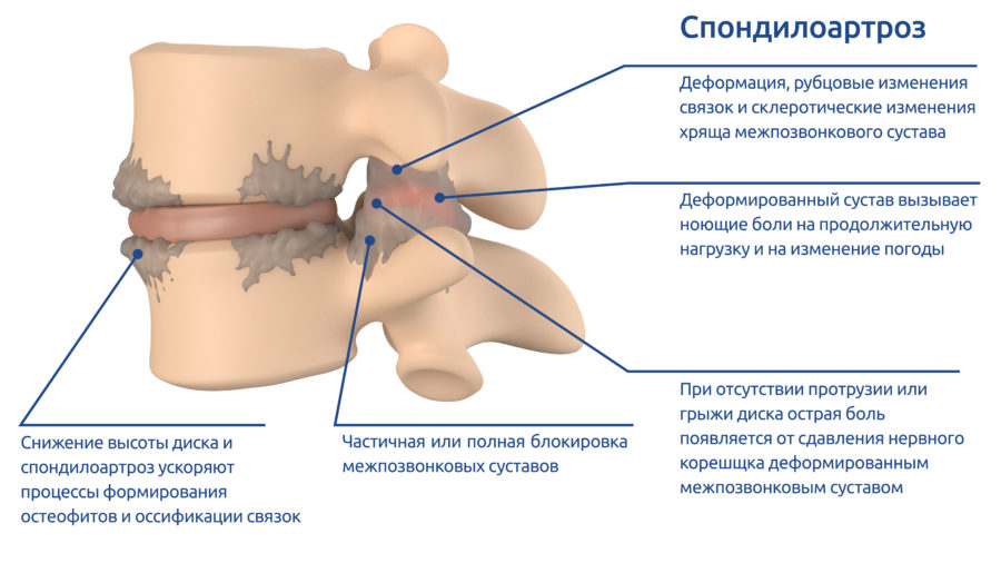 osteoPictures-04