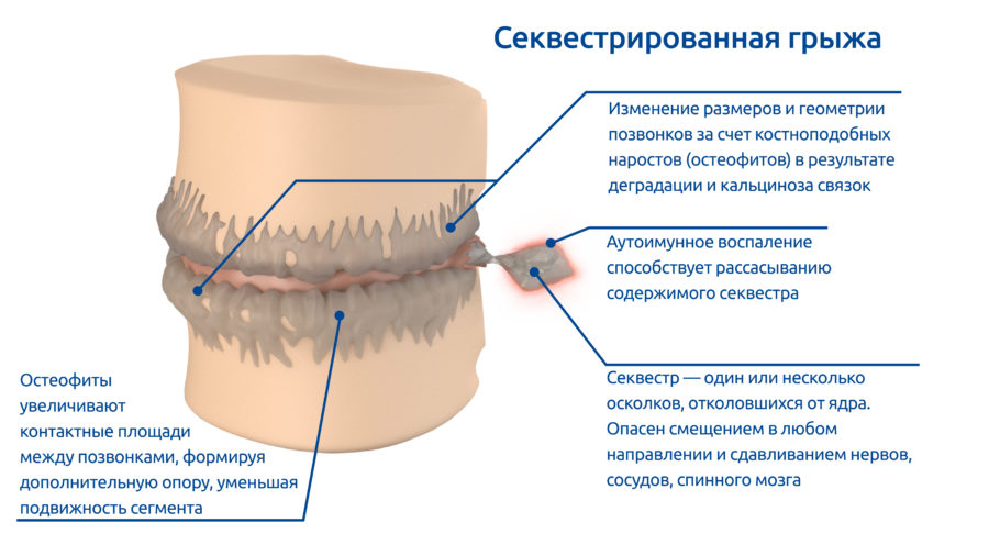 osteoPictures-06