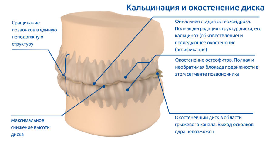 osteoPictures-07
